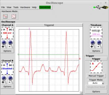 Arbitrary Waveform: ECG